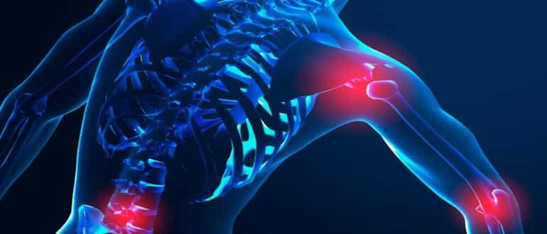 Артрит: симптомы, стадии заболевания, методы лечения