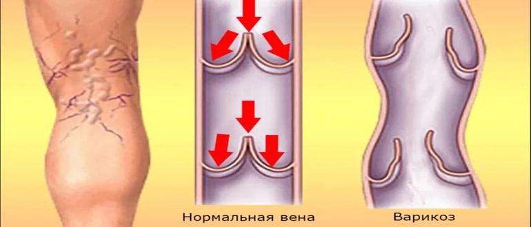 Варикозное расширение вен: народные средства лечения